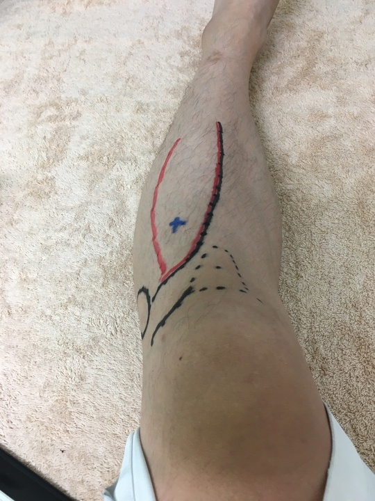 ツボ 足 三里 【便秘に効くツボ】ひざ下にある「足の三里」は胃腸を動かす特効穴 ガス腹が改善するマッサージも紹介